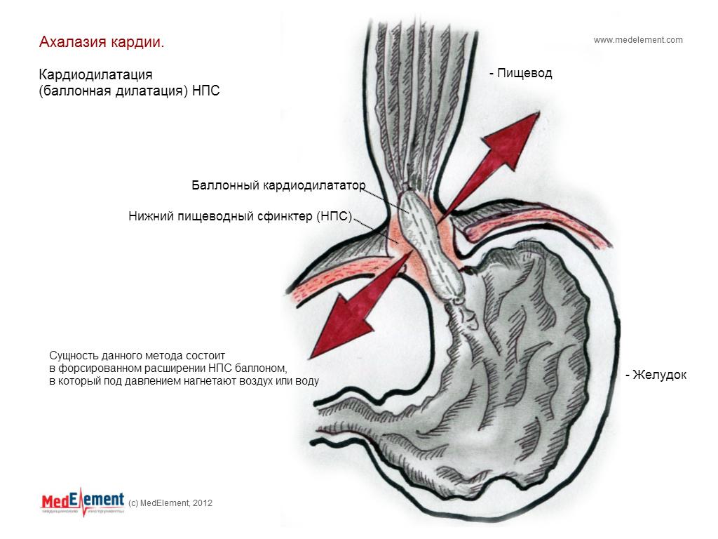 Ахалазия кардии. Лечение (баллонная дилатация (кардиодилатация))