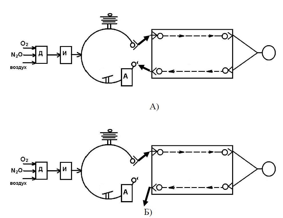 Схема аппарата ИВЛ