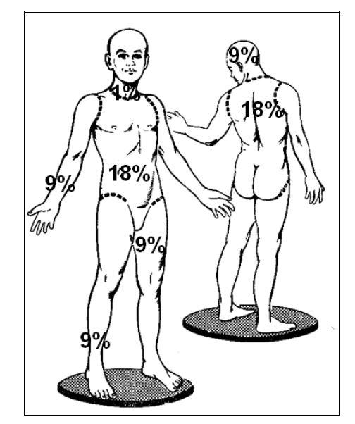 Ожоговый шок лечение — Лечение артроза и артрита, лечение подагры