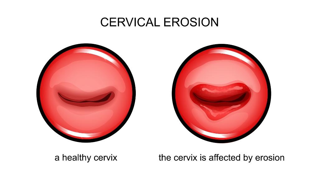 Эрозия, дисплазия, рак шейки матки