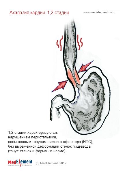 Ахалазия кардии. Классификация. 1 и 2 стадии развития.