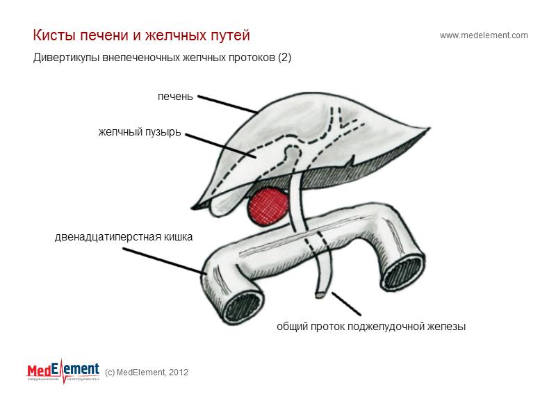 Дивертикулы внепеченочных желчных протоков