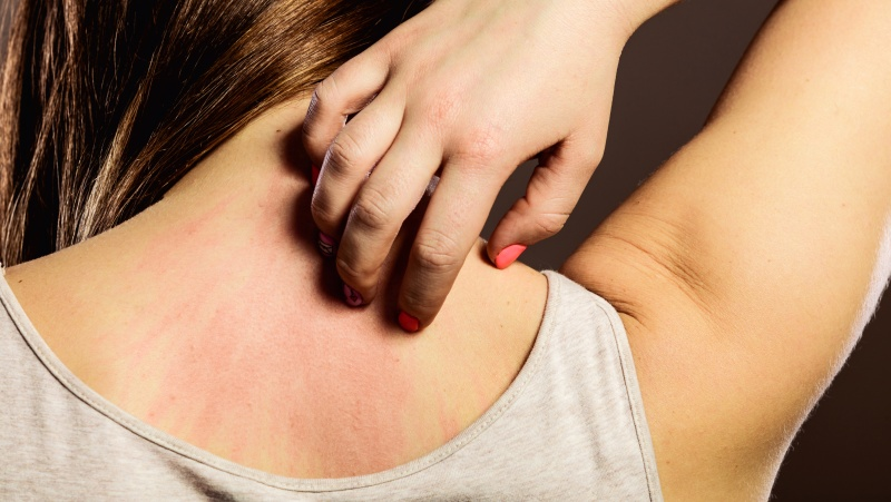 Аллергия небезобидна и ее нужно лечить