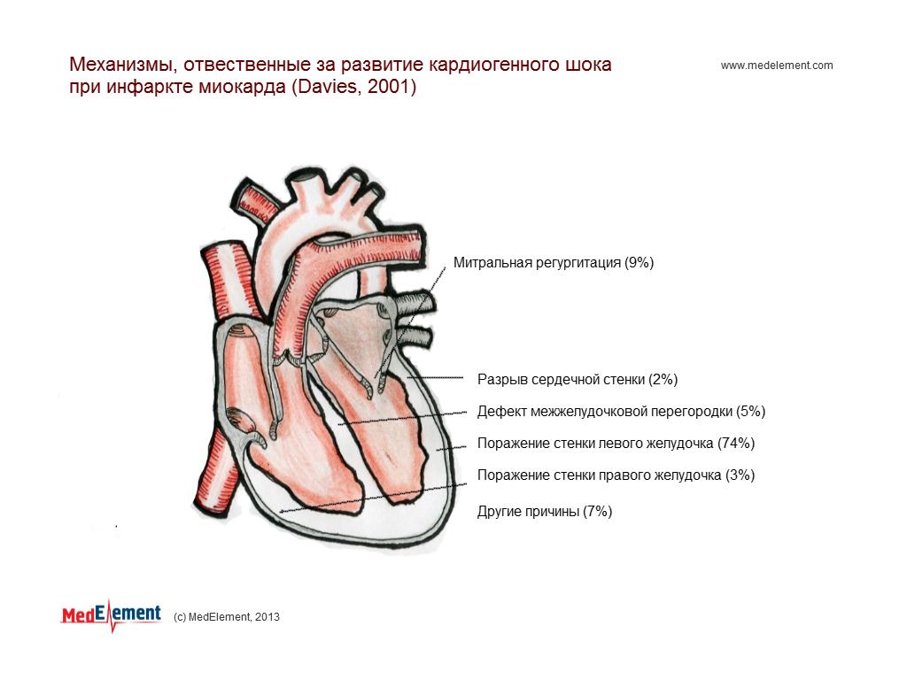 Механизмы, ответственные за развитие кардиогенного шока при инфаркте миокарда