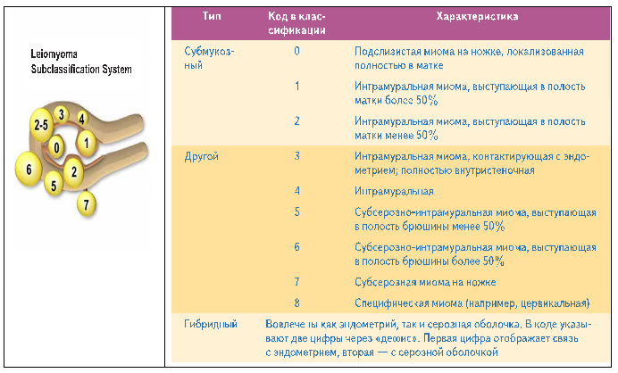 Классификация миомы матки согласно FIGO
