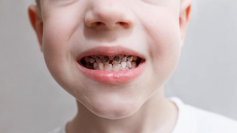 Кариес молочных и постоянных зубов встречается у почти у 80% детей