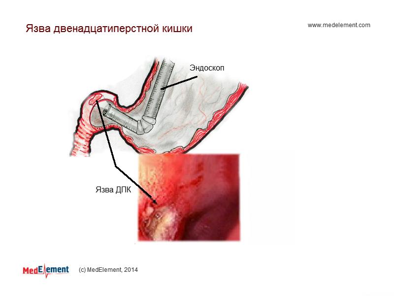 Язва двенадцатиперстной кишки. Эндоскопия