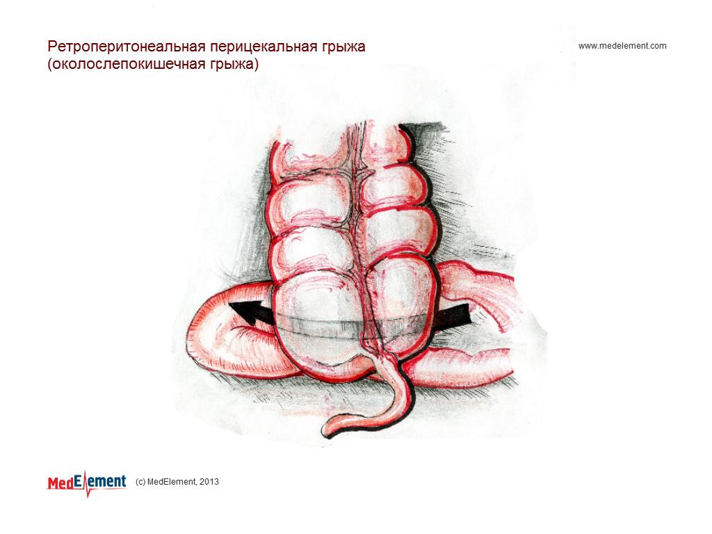 Ретроперитонеальная перицекальная грыжа (околослепокишечная грыжа)