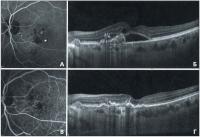 Диагностические критерии полипоидной хориоидальной васкулопатии