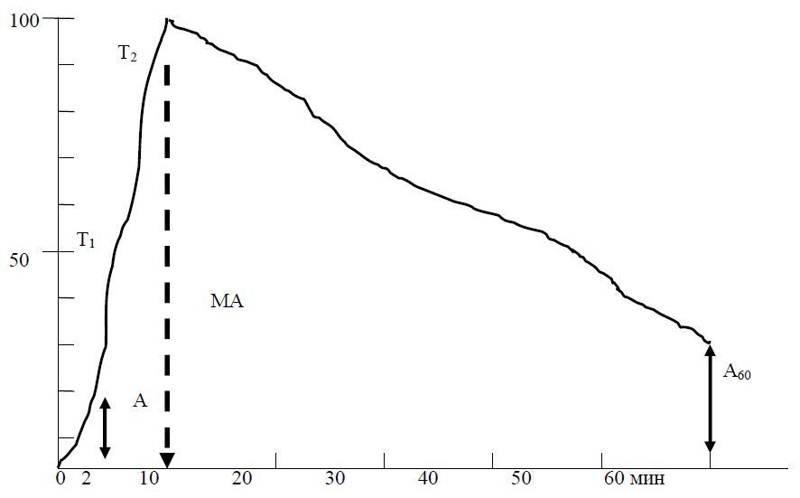 Кривая АКГ