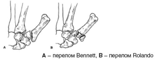 Переломы основания 1 пястной кости