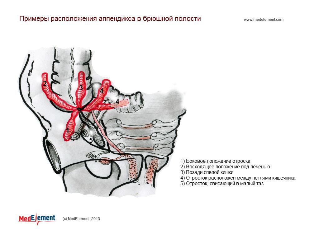 Примеры расположения аппендикса в брюшной полости