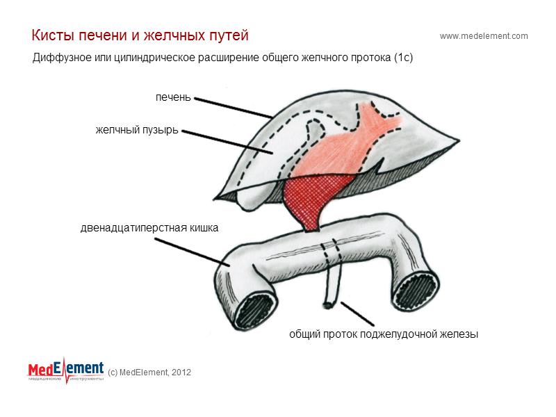 Диффузное или цилиндрическое расширение общего желчного протока
