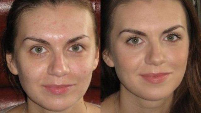 Танальный крем для проблемной кожи должен обладать лечебным эффектом