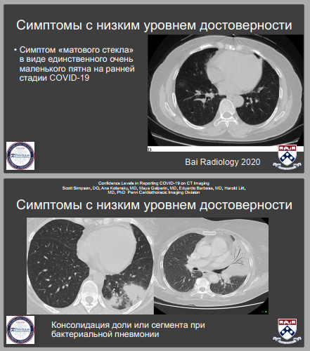 Документ призван помощь врачам в постановке достоверного диагноза  пациентов с подозрением на COVID-19