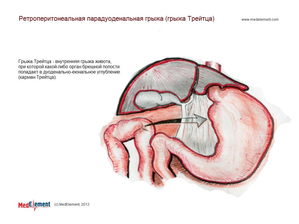 Ретроперитонеальная парадуоденальная грыжа (грыжа Трейтца)