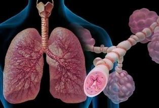 Обострение хронической обструктивной болезни легких