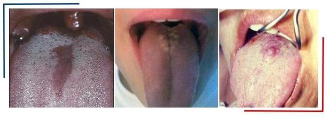 Ромбовидный глоссит