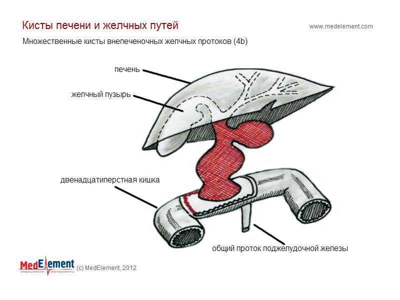 Множественные кисты внепеченочных желчных протоков