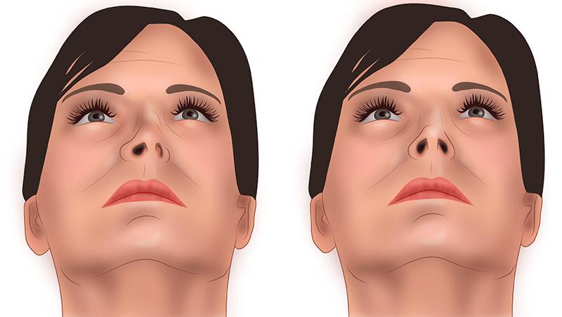 Причины, по которым деформировалась носовая перегородка, могут быть разными