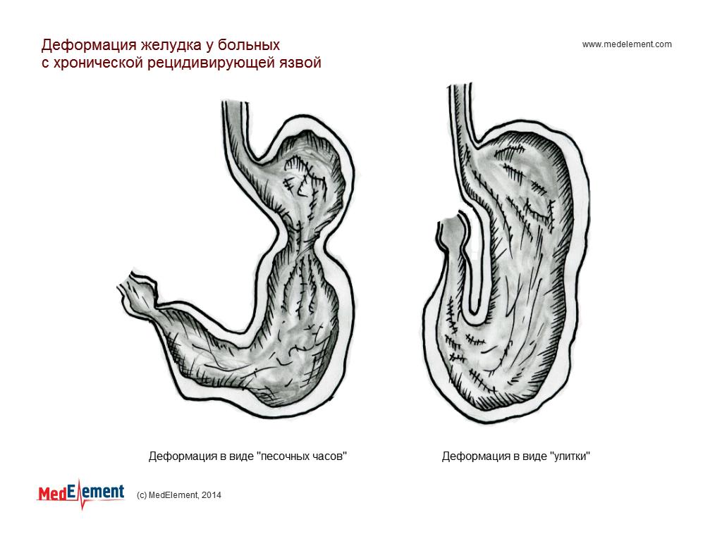 Деформация желудка у больных с хронической рецидивирующей язвой
