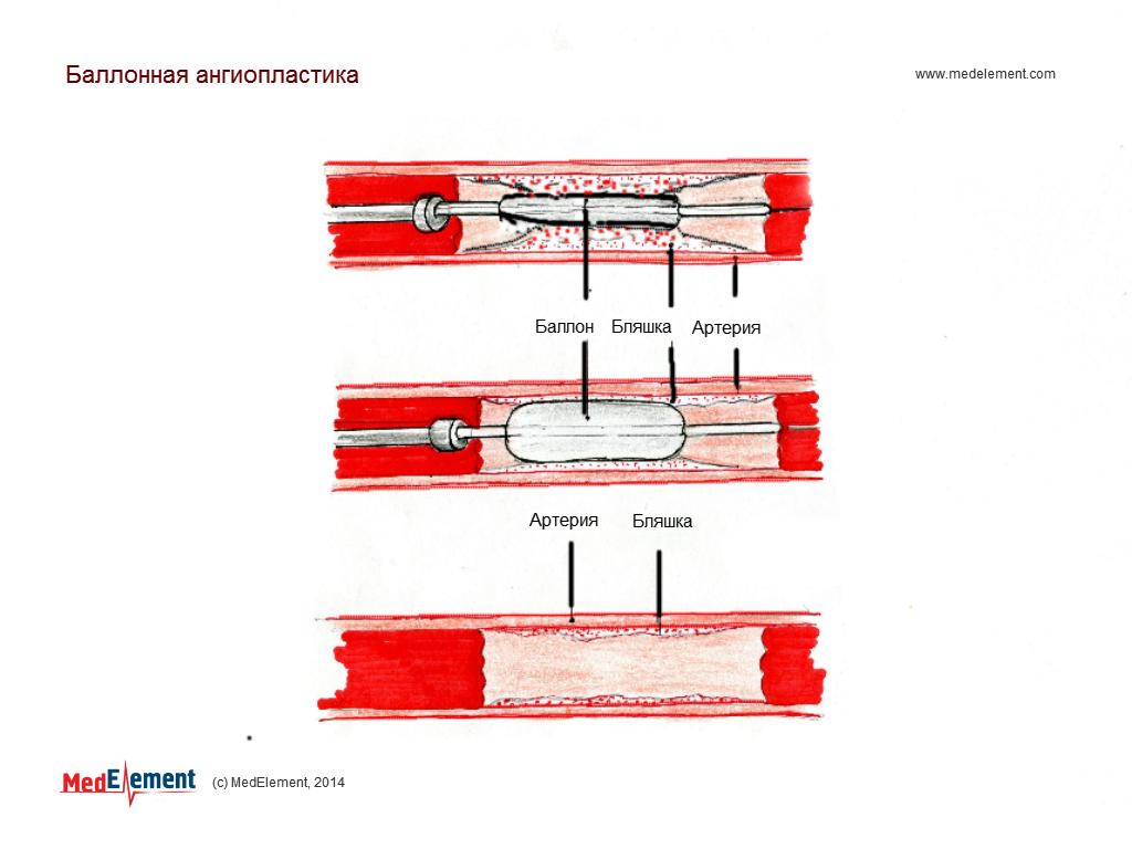 Острый инфаркт миокарда. Баллонная ангиопластика