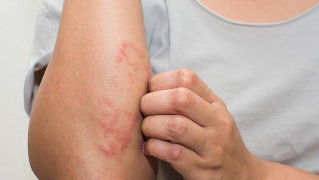 Кожные высыпания - один из частых симптомов пищевой непереносимости