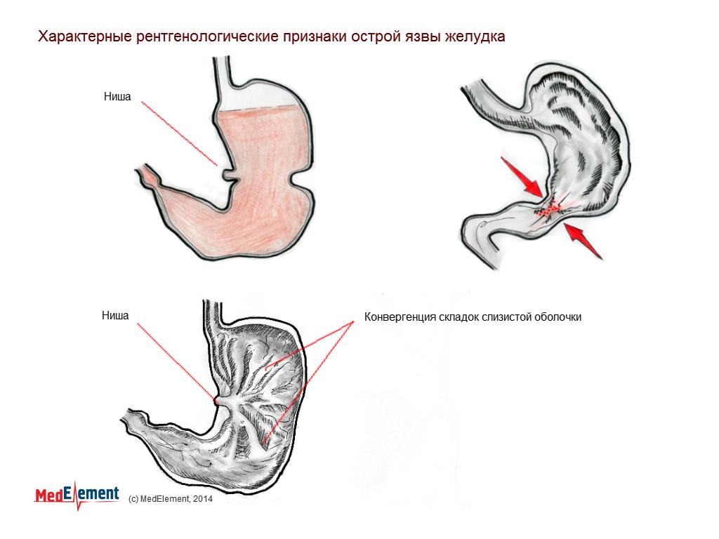 Характерные рентгенологические признаки острой язвы желудка