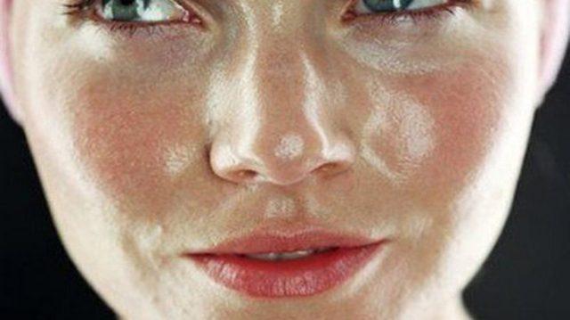 Определить жирный тип кожи можно визуально