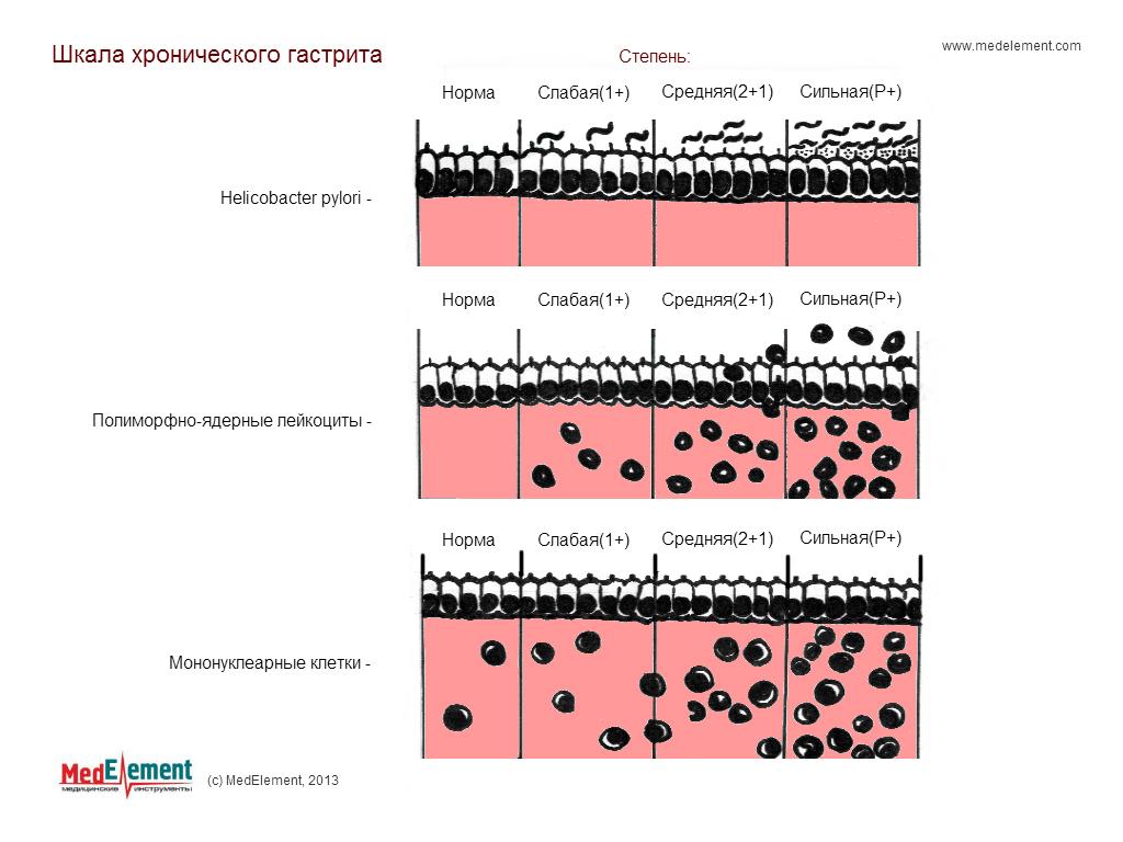 Шкала хронического гастрита