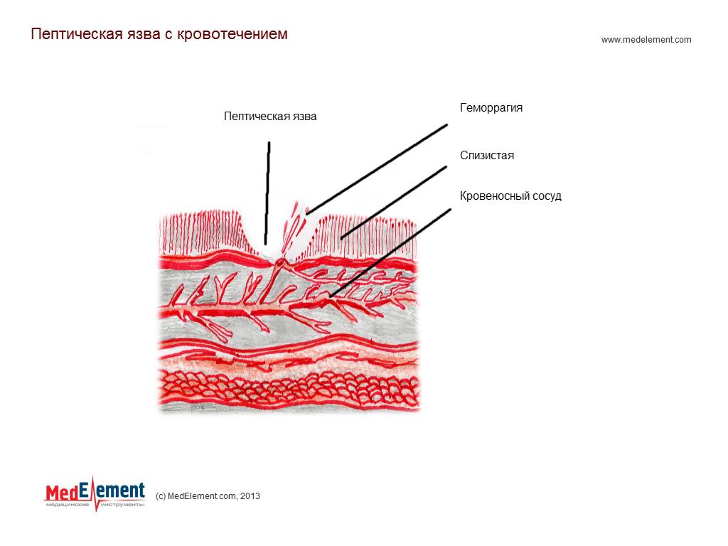 Пептическая язва с кровотечением