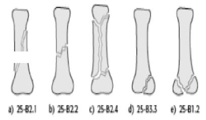 Классификация переломов пястной кости